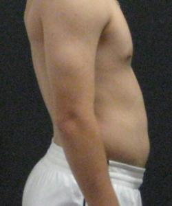 Back Pain 3 - 5