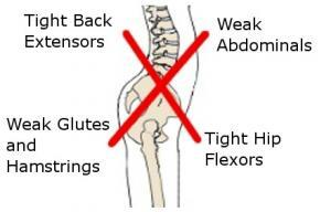 Back Pain 3 - 6
